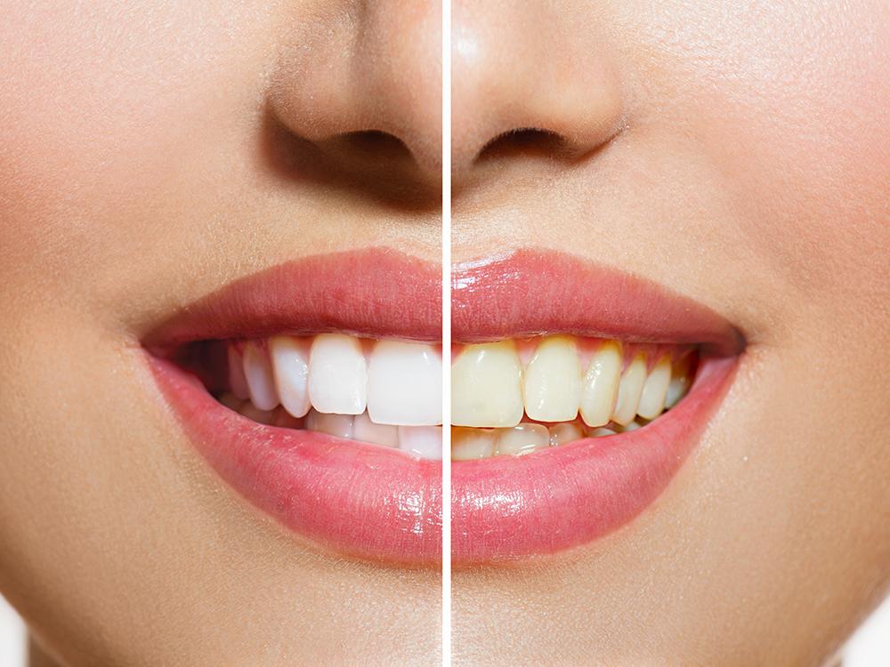 画像加工で歯を黄色から白にする