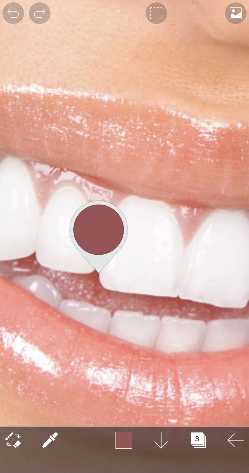アプリ「アイビスペイントX」でスポイト機能で歯の周辺の色を採った状態