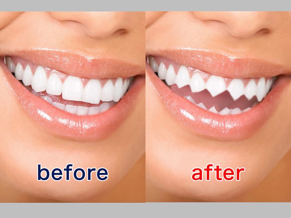 アプリ「アイビスペイントX」でギザ歯に加工する前と後の写真